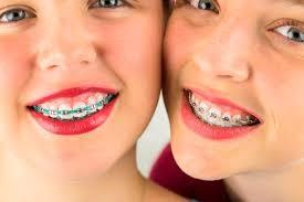 Ortodoncia y Brackets en la actualidad