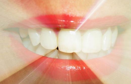 Blanqueamiento dental, solución a los dientes amarillos