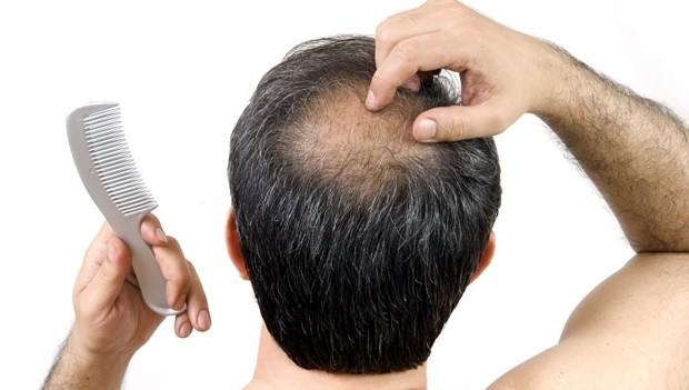 Productos contra la caída del pelo: ¿realmente funcionan?